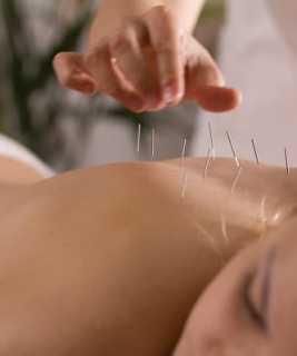 Sleep Promoting Benefits of Acupuncture